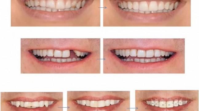 En İyi Estetik Diş Hekimi – Türkiye'deki En İyi 5 Profesör!
