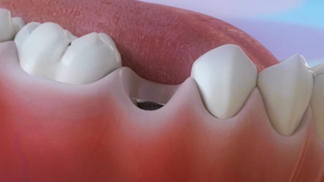 Devlet Hastanesi Diş İmplant Tedavisi (SGK)