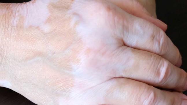 Vitiligo Hastalığı Bitkisel Tedavisi