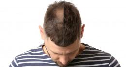 En İyi Saç Ekimi Yapan Doktorlar ve Fiyatları