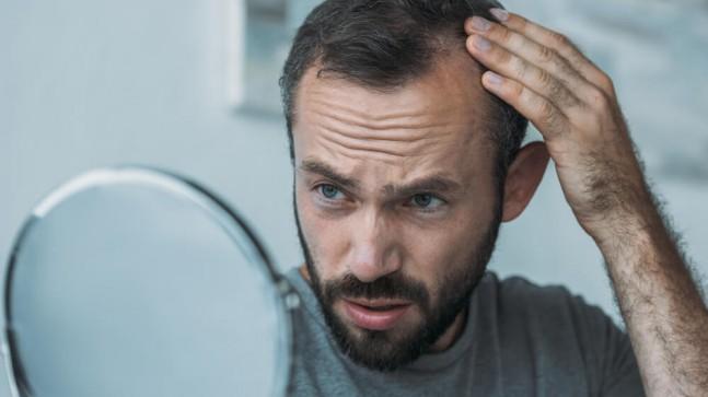 Saç Ekimi Ne Zaman Yapılır? 4 Mevsim Uygun Mu?