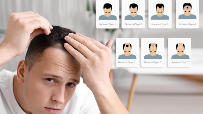 Greft Nedir? 1 Greft Kaç Saç Teli Eder? Greft Hesaplaması Nasıl Yapılır?