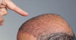 En Çok Tercih Edilen Saç Ekim Merkezleri ve Fiyatları – Rehber Hangileri?