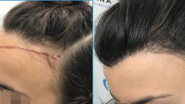 En İyi Saç Ektirme Merkezleri Türkiye