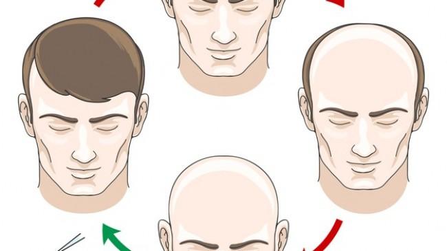 En iyi Saç Ektirme Merkezleri ve Fiyatları