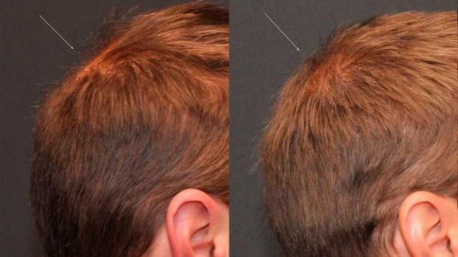 Saç Ekimi Yaptıranlar Memnun Mu? 5 Önemli Tavsiyeyi Okuyun