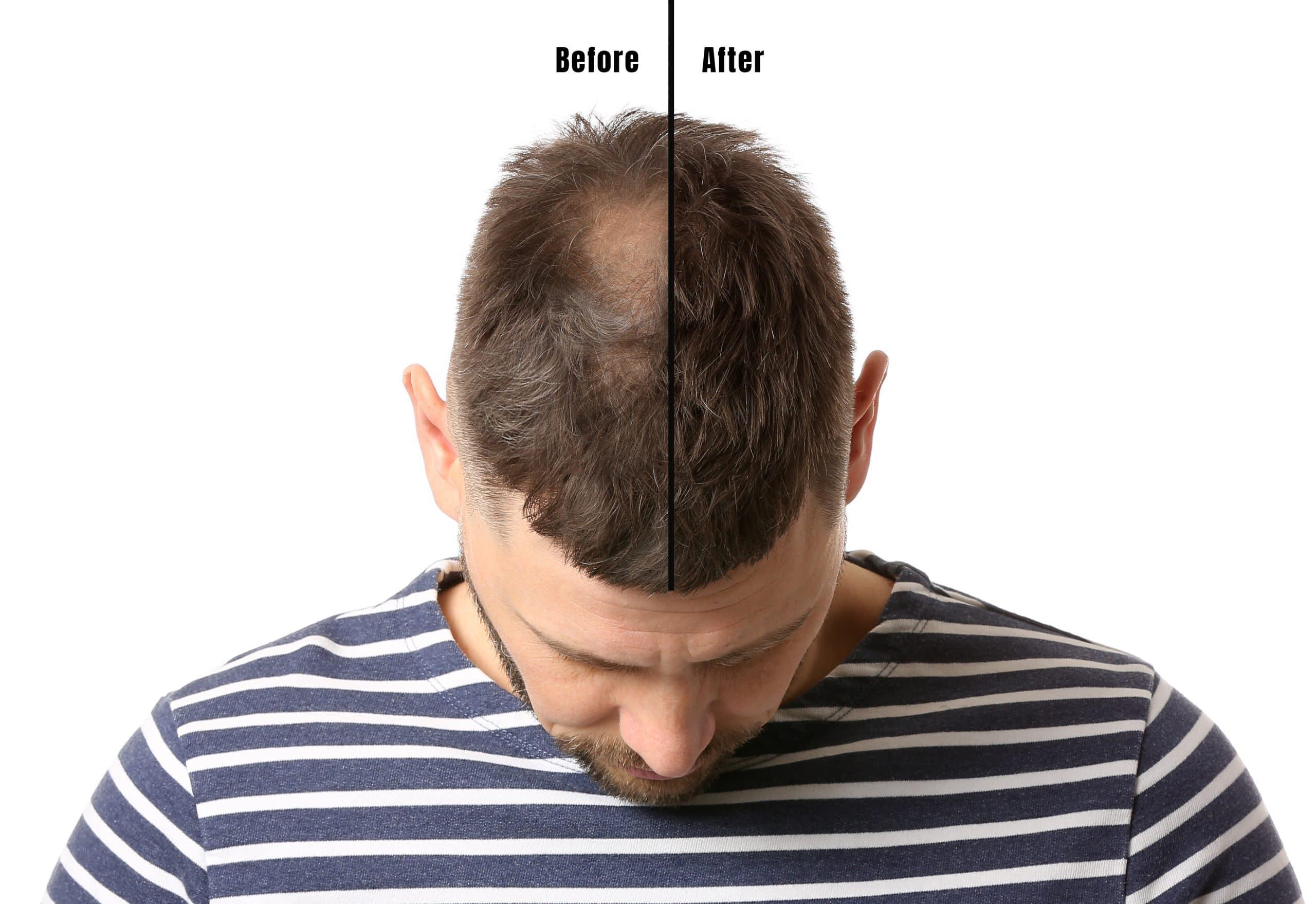 Saç Ekim İşlemi Nasıl Yapılır?