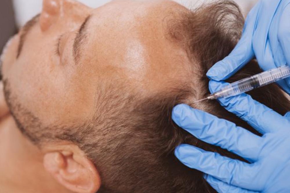 Saç Dökülmesine Karşı Solüsyon