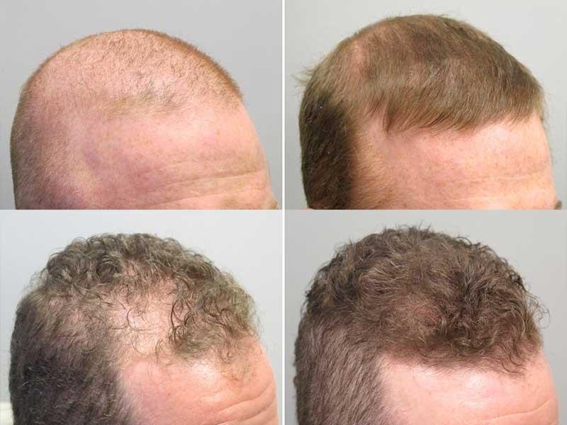 En iyi Saç Ektirme Merkezleri ve Fiyatları Tripasthetic