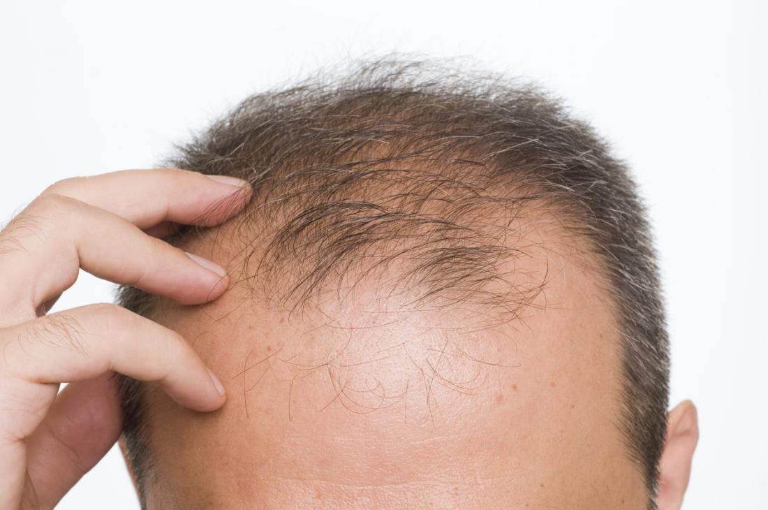 Neden Saç Ekimi Yaptırmalıyız?