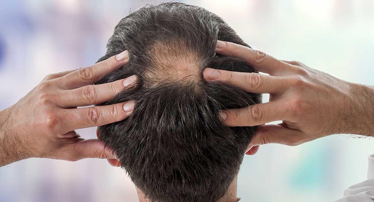 Kaç Defa Saç Ekimi Yapılabilir?