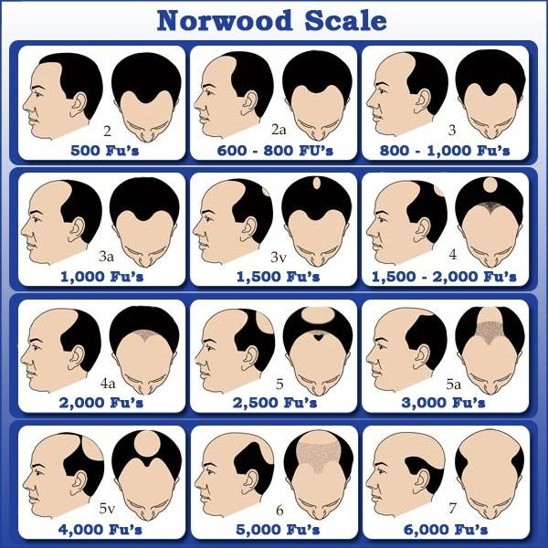 Saç Ekimi İçin Kaç Greft Gerekir
