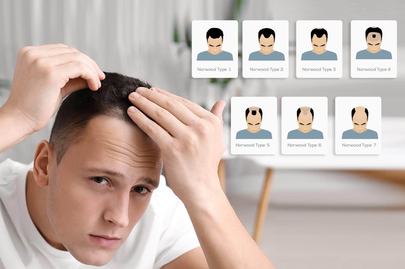 En İyi Saç Ekimi Yapan Doktorlar zekeriya kul