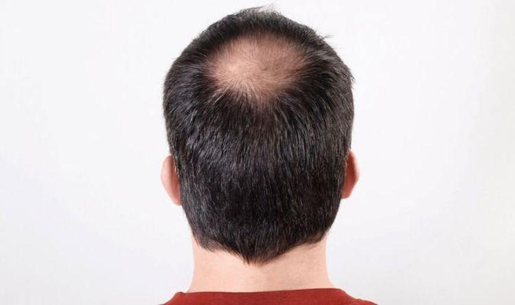 Traşsız Saç Ekimi Hangi Bölgelere Yapılır