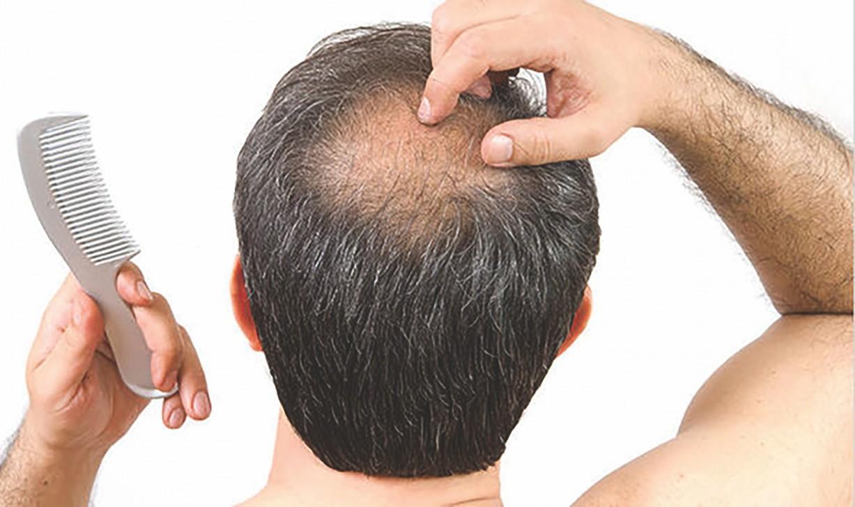 Saç Ekimi Var Olan Saçlara Zarar Verir Mi?