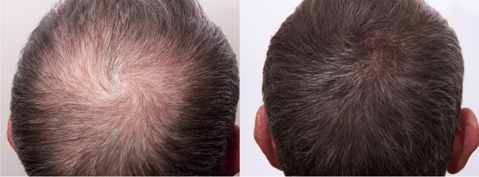 Traşsız Saç Ekimi Ne Kadar Sürer?