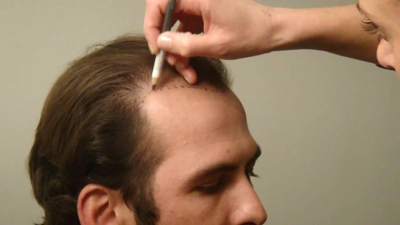 En İyi Saç Ekim Merkezleri Güncel Fiyatlar